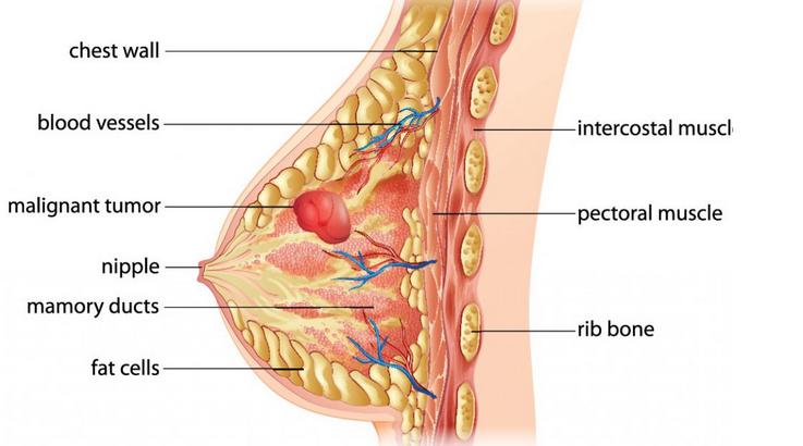 Topline Pharmacy Breast-cancer Breast Cancer
